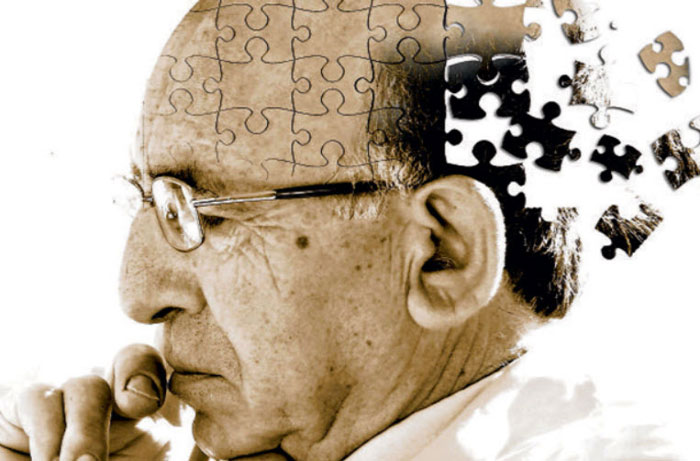 Long-Term Dabigatran Treatment Delays Alzheimer's Disease